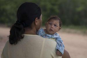 Virus Zika : première naissance d'un bébé atteint de microcéphalie en Espagne