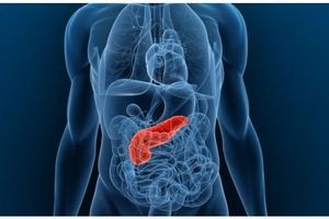 Cancer du pancréas : vers une amélioration de la prise en charge