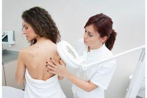 Nouveau médicament contre une forme avancée du cancer de la peau