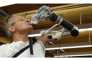 USA: feu vert à la commercialisation du premier bras bionique