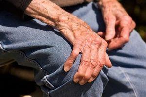 """Arthrose : Dr. Bertrand Cherrier, """"Aujourd'hui, on essaye de réparer les lésions"""""""