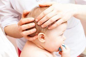 Images 3D inédites de la déformation crânienne des bébés pendant l'accouchement