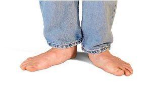 Les pieds plats Symptômes et traitement Doctissimo