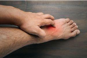 Érysipèle : une infection cutanée contagieuse - Doctissimo