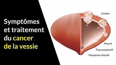 Symptômes et traitements du cancer de la vessie