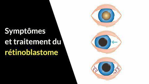 Symptômes et traitements du rétinoblastome