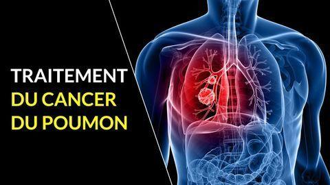 traitement cancer du poumon