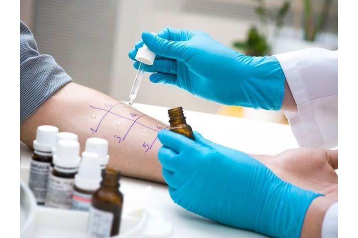 Bilan Allergologique Les Tests D Allergie Doctissimo