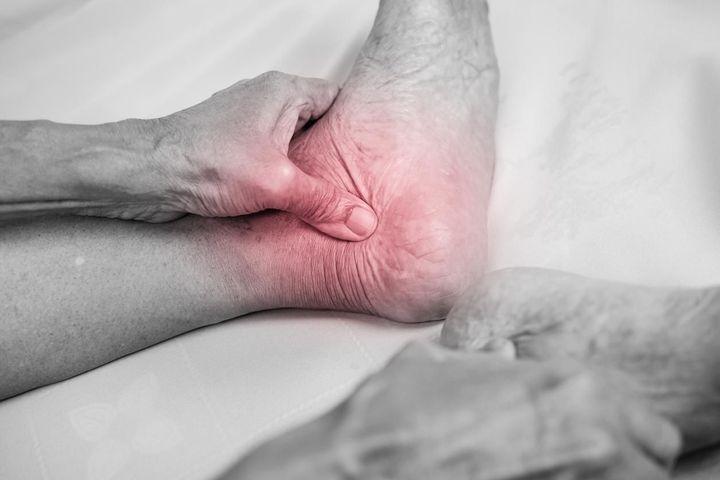 arthrose pied