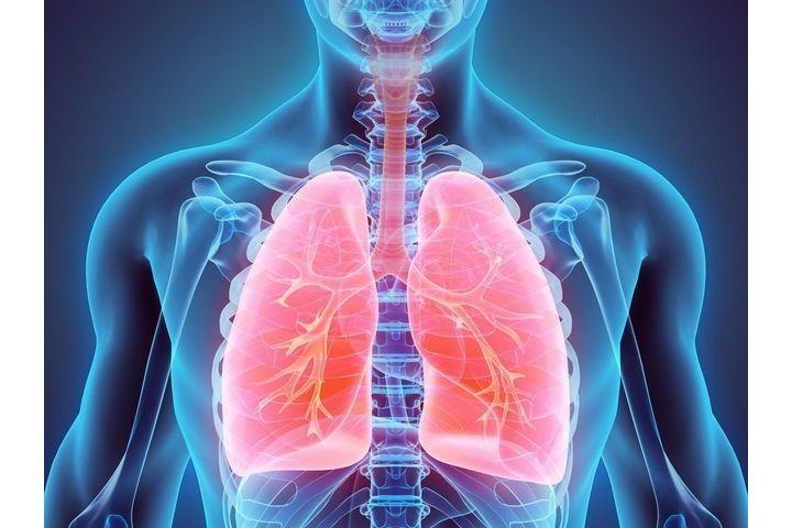 thermoplastie-bronchique