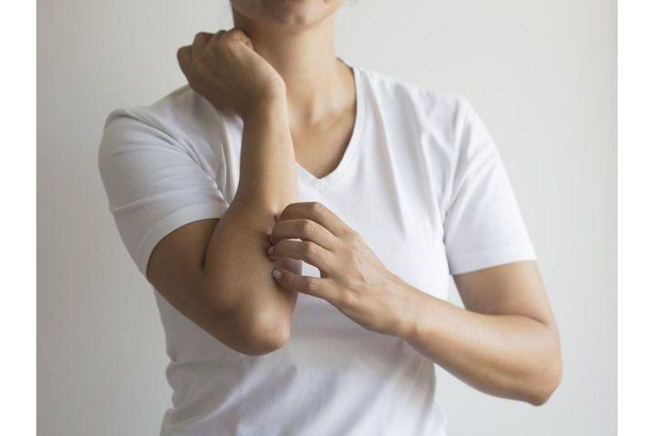 eczema-de-contact