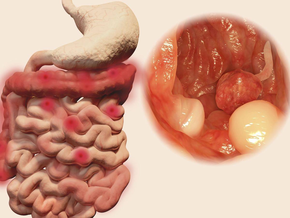 Cancer colon stade 4, Cancerul de colon se vede la tomograf - tulipanpanzio.ro