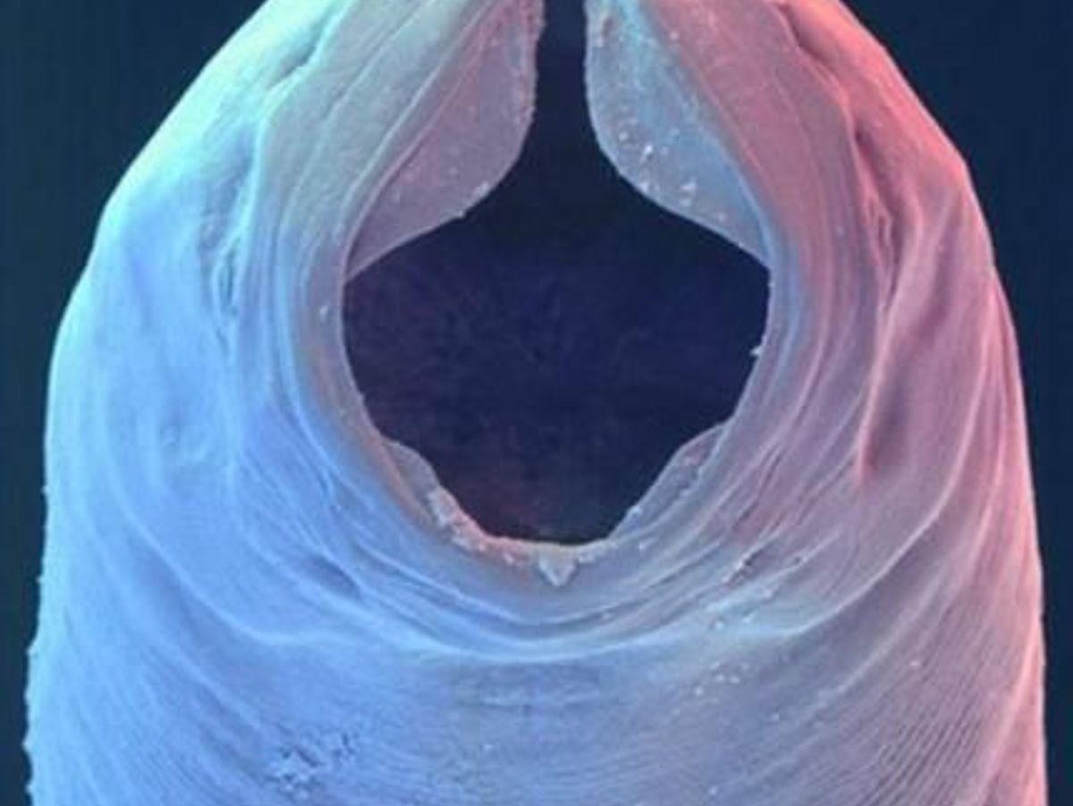 les parazitok chez l homme piros férgek a medenceben