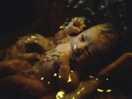 L'accouchement dans l'eau en 10 questions
