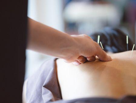 L'acupuncture pour soigner les troubles de l'érection