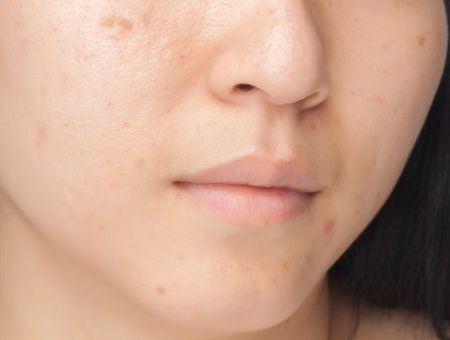 Cicatrices d'acné : les traitements