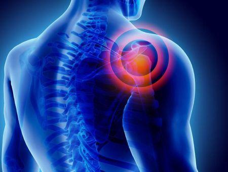 Arthrose de l'épaule ou omarthrose