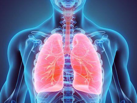 Thermoplastie bronchique contre l'asthme sévère