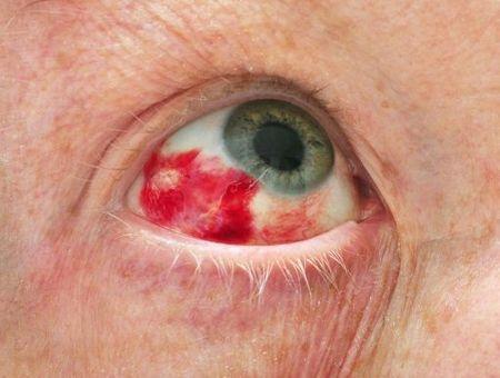 Hémorragie de la conjonctive : causes, symptômes et traitement