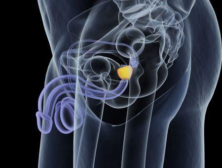 Cancer de la prostate