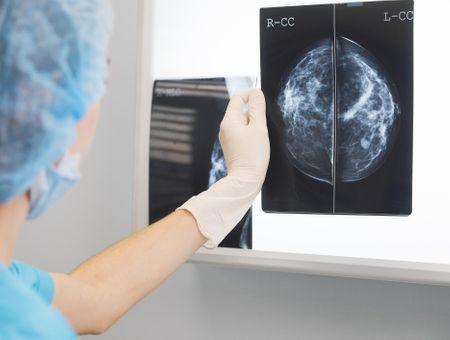 Grades et stades du cancer du sein