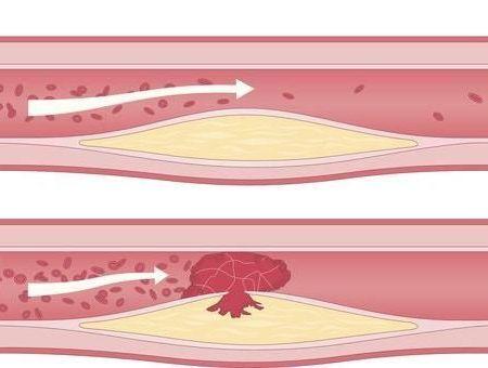 Les symptômes du cholestérol