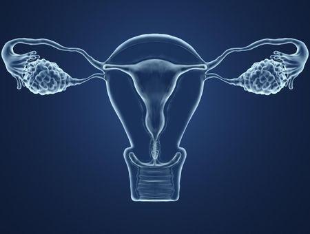 La contraception des dystrophies ovariennes