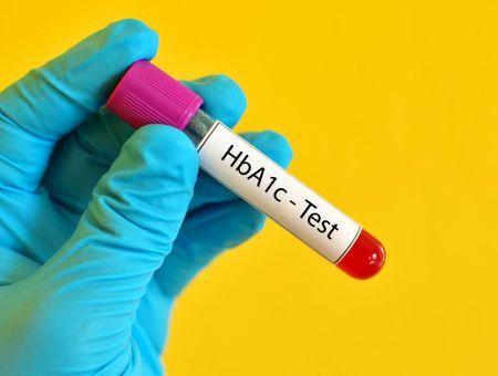 Hémoglobine glyquée ou glycosylée (HbA1C)