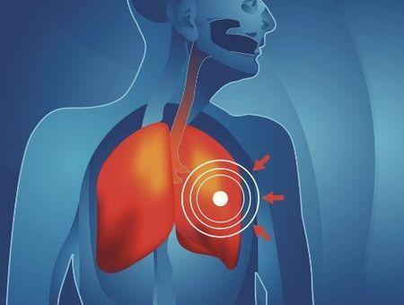 Le cancer secondaire du poumon