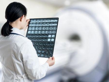 Diagnostic de l'AVC : quels examens pratiquer ?