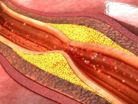 Athérectomie : principe, indications, complications, suivi médical