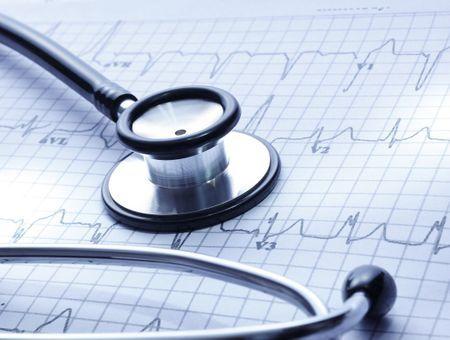 L'électrocardiogramme d'effort ou épreuve d'effort