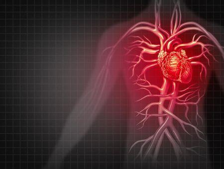 L'asthme cardiaque, une manifestation audible de troubles cardiaques