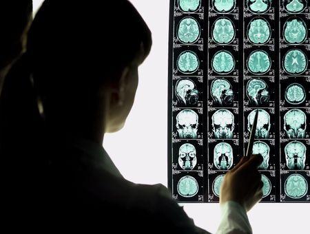 La rupture d'anévrisme cérébral