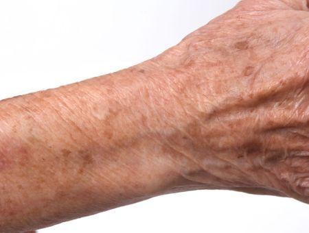 Qu'est-ce que la dermatoporose ?