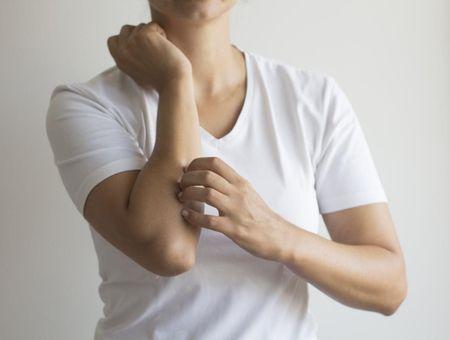 L'eczéma de contact : symptômes, causes et traitements