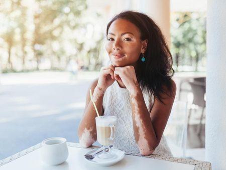 Le vitiligo : une dépigmentation de la peau