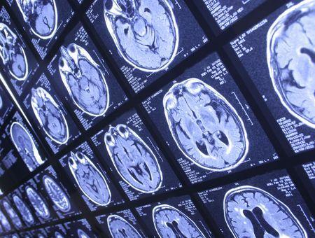 Maladie de Parkinson : une nouvelle approche thérapeutique par la lumière infrarouge