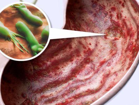 Complications des ulcères gastro-duodénaux