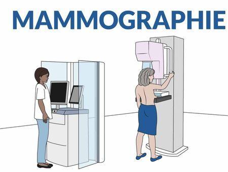 Comment se passe une mammographie ?