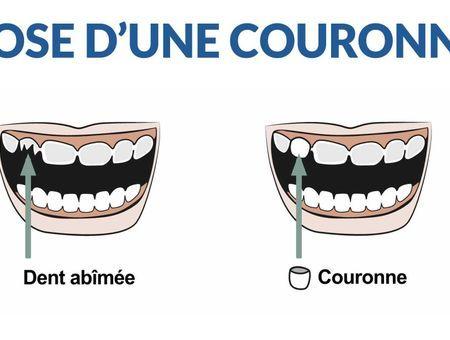 Comment le dentiste pose-il une couronne ?