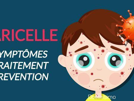Varicelle – Des symptômes à la guérison