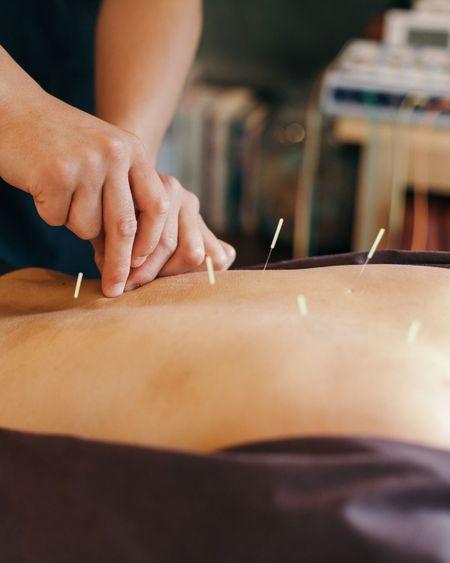 7 choses à faire après une séance d'acupuncture