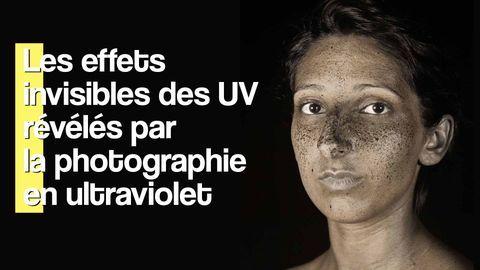 effets uv peau