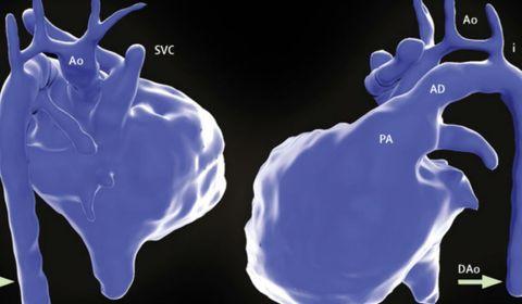 Une nouvelle imagerie 3D révolutionne la prise en charge des malformations cardiaques à la naissance