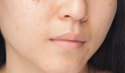 Traitement cicatrices acné