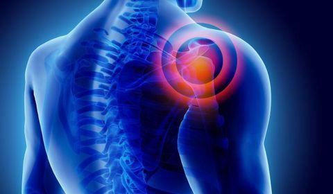 arthrose épaule