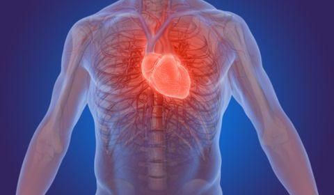 infarctus mauvais cholestérol