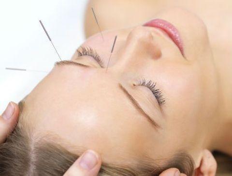 Un soin lifting par l'acupuncture - Beauty Spot : nos adresses coups de coeur