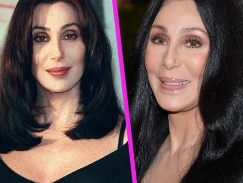 Cher - Stars : les pires ratés de la chirurgie esthétique !